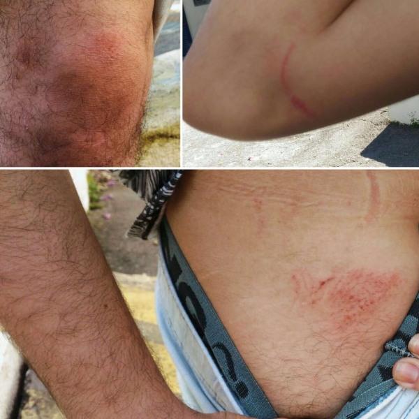jovem_sofre_violencia_policial_em_ato_contra_corte_de_passe_livre